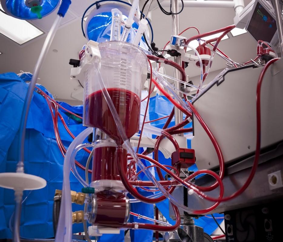 жизни картинки аппарата искусственного кровообращения вас уши встанут